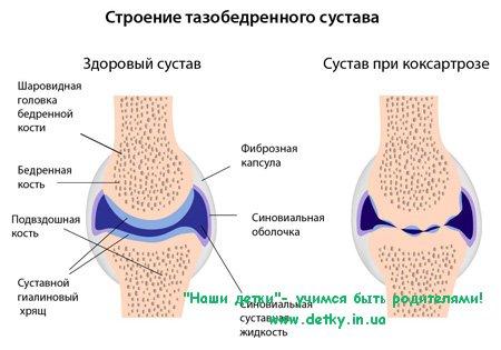 Коксартроз - артроз тазобедренного сустава